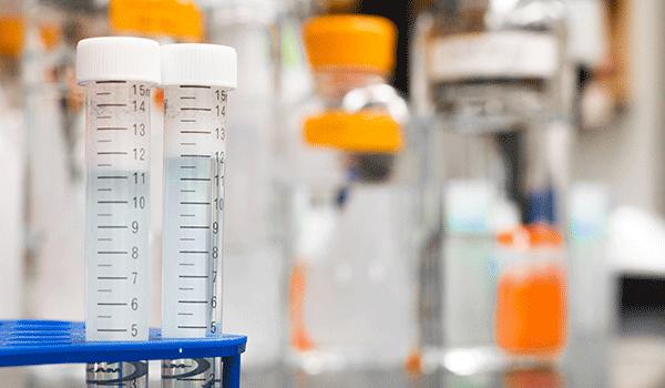 biology blur blurred background 954585 - COVID-19: Getting a Coronavirus Test
